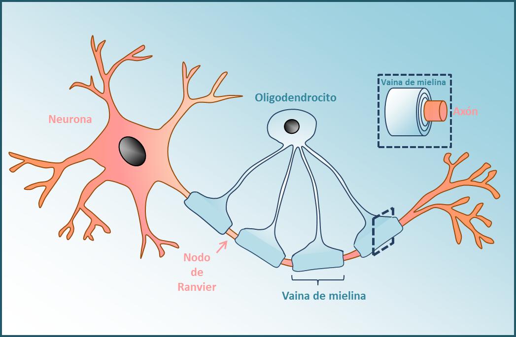 mielina enfermedades
